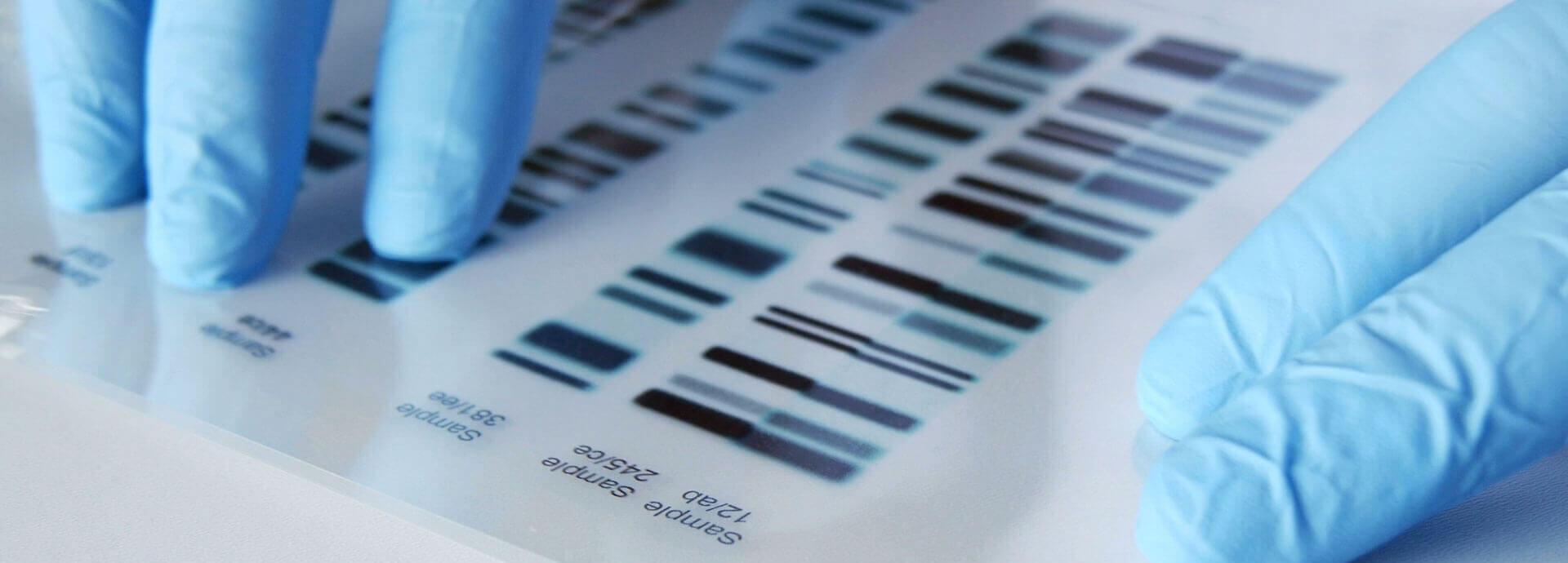 DNA Testing Buffalo NY